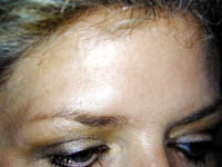 BOTOX® Cosmetic Case : 1 Frontal After