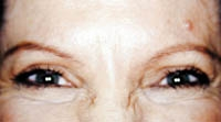 BOTOX® Cosmetic Case : 3 Frontal After