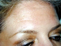BOTOX® Cosmetic Case : 1 Frontal Before